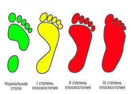Как определить плоскостопие по отпечатку стопы